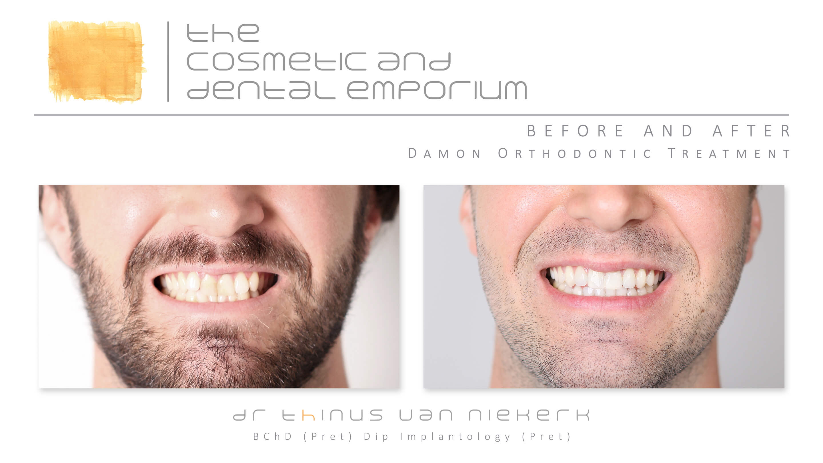 Damon Orthodontics